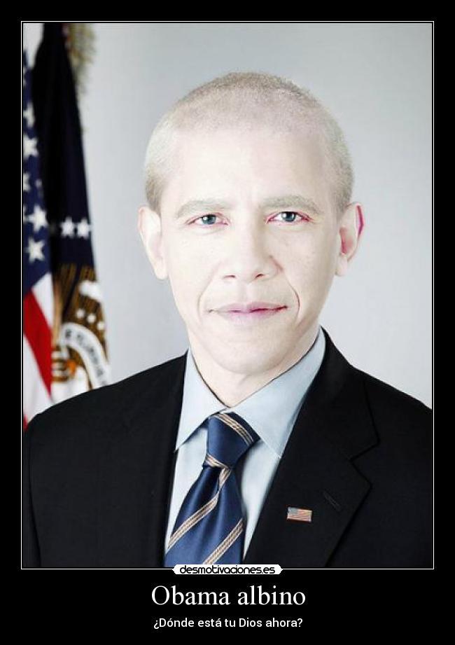 Negros Albinos Memes