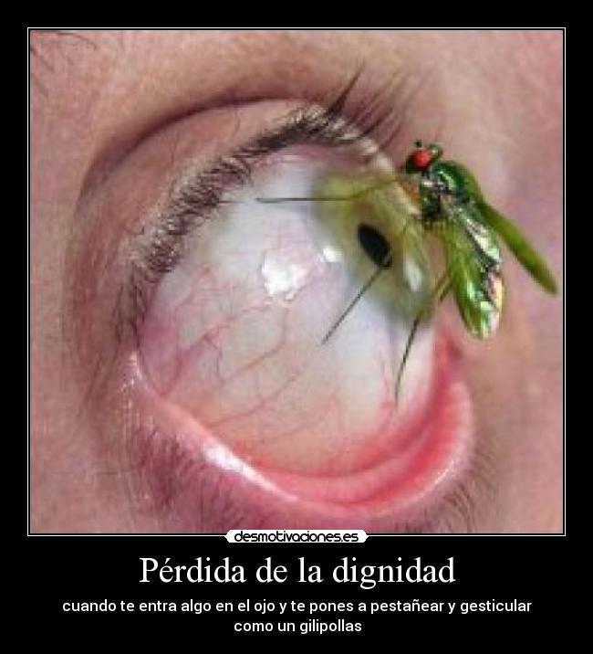 carteles perdida dignidad entra algo ojo pones pestanear gesticulas gilipollas mosquito desmotivaciones