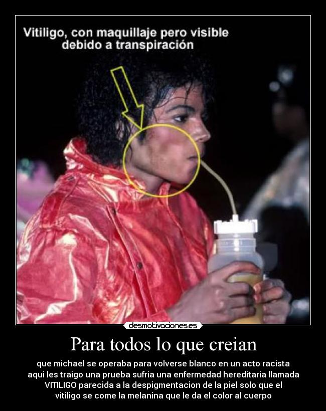 vitiligo and michael jackson essay Michael joseph jackson ) august 29  the making of michael jackson's thriller won a grammy for  and that while the vitiligo partially lightened jackson's.