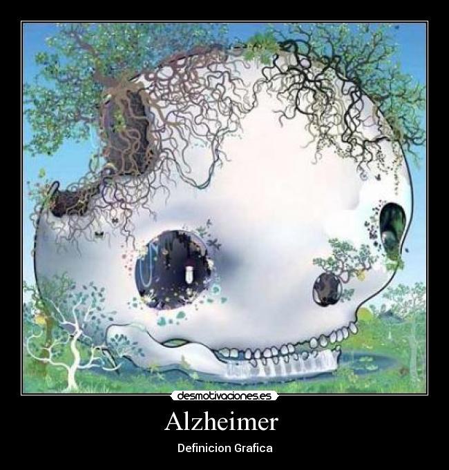 Alzheimer  - Definicion Grafica