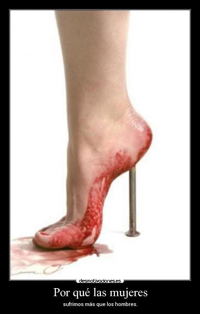 шишка на ноге сзади пятки