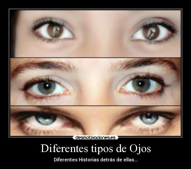 Diferentes tipos de ojos desmotivaciones for Diferentes tipos de viveros