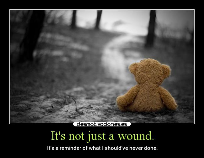 Its not just a wound. - Its a reminder of what I shouldve never done.