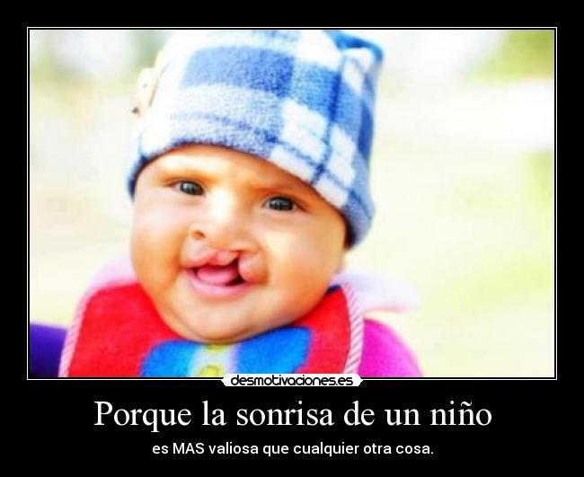Porque La Sonrisa De Un Niño Desmotivaciones